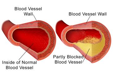 Blausen_0052_Artery_NormalvPartially-BlockedVessel-1024x670